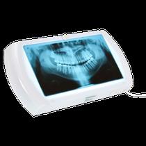 Negatoscópio Slim LED Panorâmico - BIOTRON